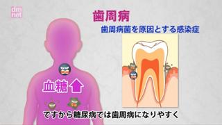 5-10. 糖尿病と歯周病