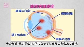 5-2. 糖尿病網膜症