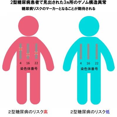 2型糖尿病患者で見出された3ヵ所のゲノム構造異常