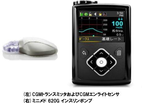 CGM トランスミッタ CGM エンライトセンサ ミニメド620Gインスリンポンプ