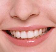 歯周病予防のために3つのチェックポイント 歯科医師が解説