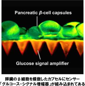 膵臓のβ細胞を模倣したカプセルにセンサー「グルコース-シグナル増幅器」が組み込まれてある