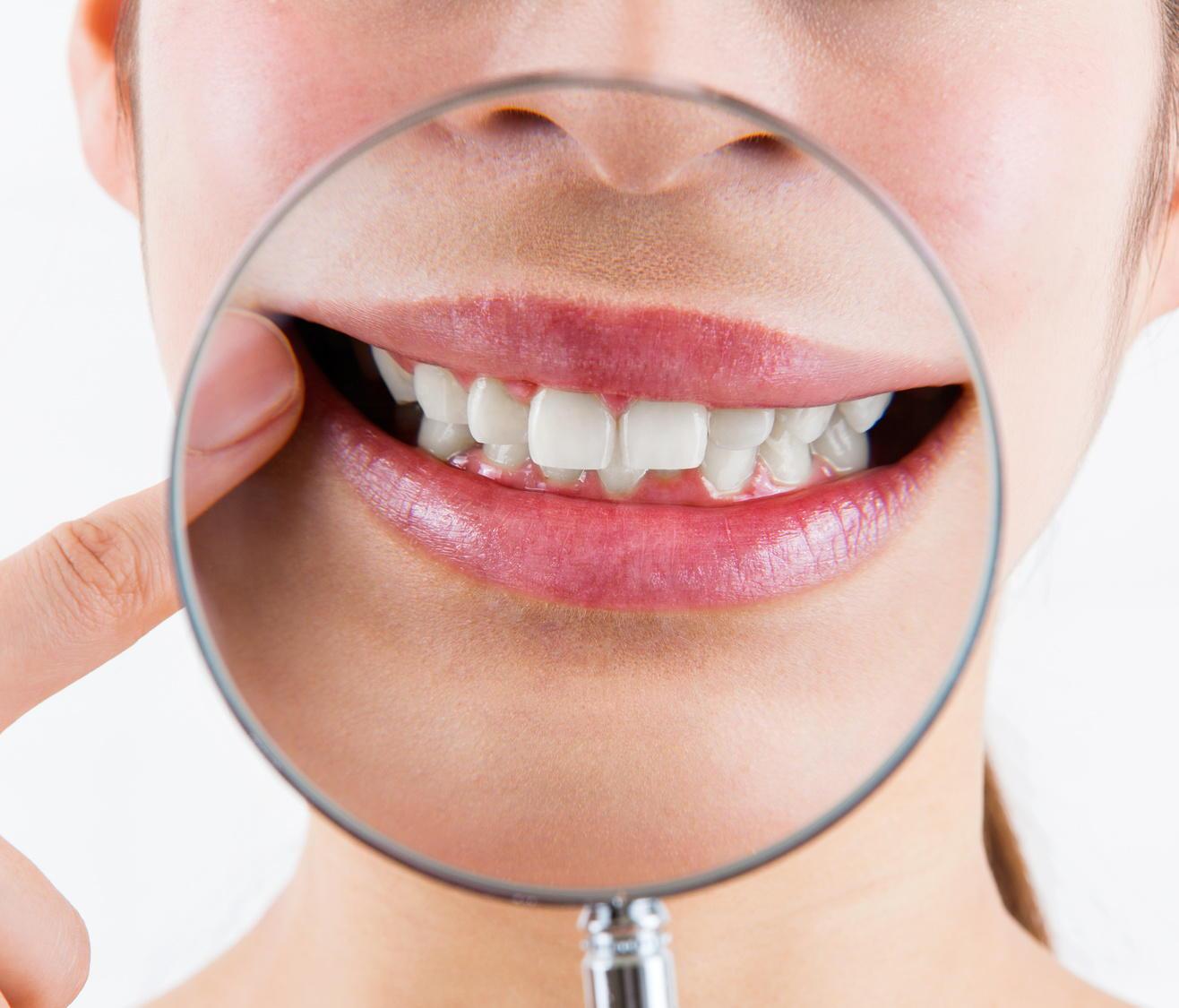 50歳代の6割が歯や口の中が「健康ではない」と回答 歯科医師会調査