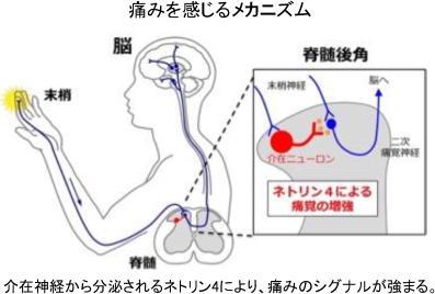 「神経障害性疼痛」を解明 痛みを抑える画期的な治療につながる成果