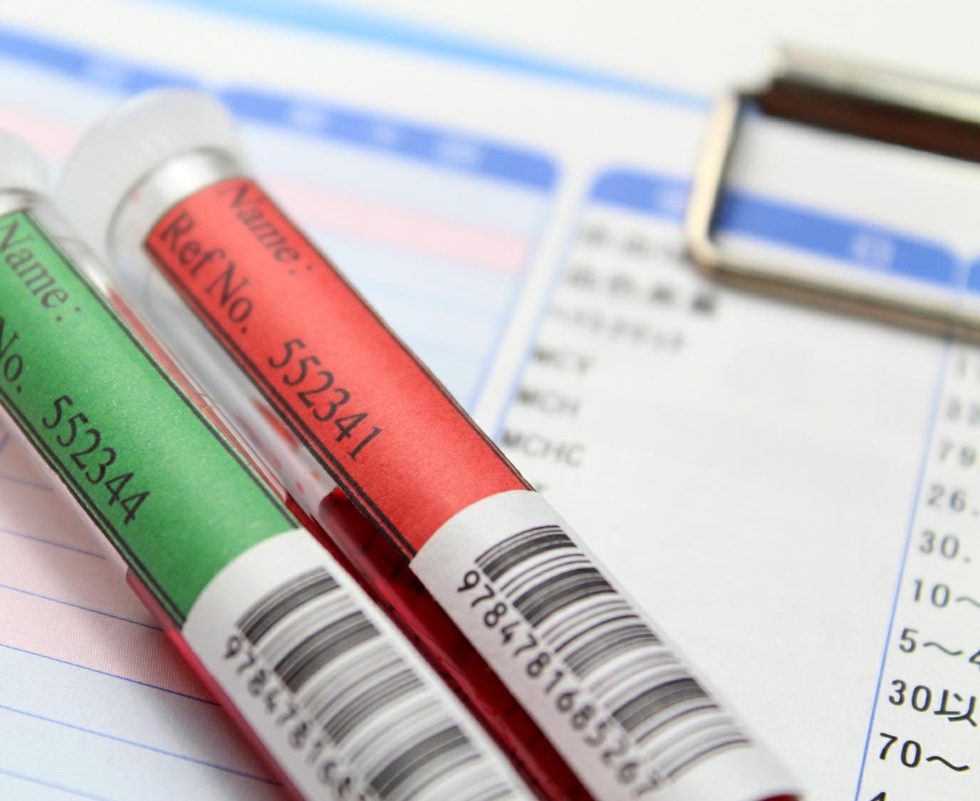 健康保険加入者の37%が肥満 脂質や血圧など複数のリスク 健保連調査