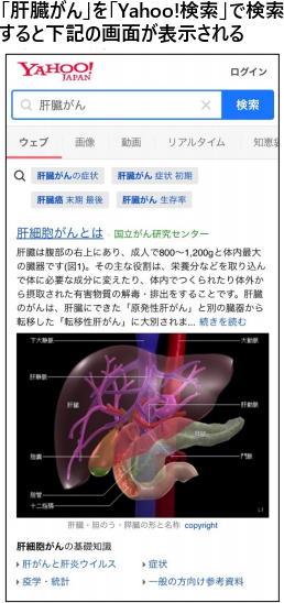 国立がん研究センターとヤフーが連携 検索で「がん情報サービス」を表示