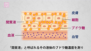 4-7-C 血糖トレンドを知る方法〜SMBG、CGM、FGM