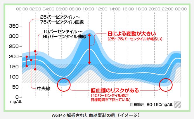 AGPで解析された血糖変動の例(イメージ)