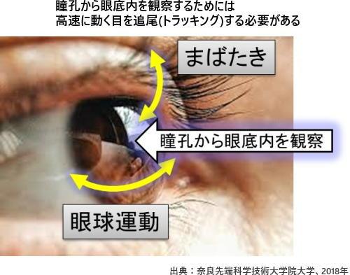 瞳孔から眼底内を観察するためには高速に動く目を追尾(トラッキング)する必要がある