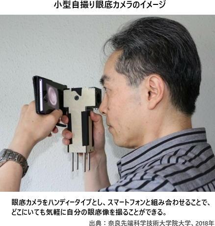 小型自撮り眼底カメラのイメージ。眼底カメラをハンディータイプとし、スマートフォンと組み合わせることで、どこにいても気軽に自分の眼底像を撮ることができる。