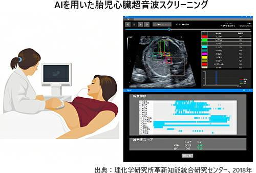 人工知能(AI)で胎児の「心臓異常」を出生前に検知 早期治療を可能に