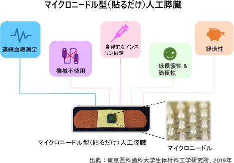 マイクロニードル型(貼るだけ)人工膵臓