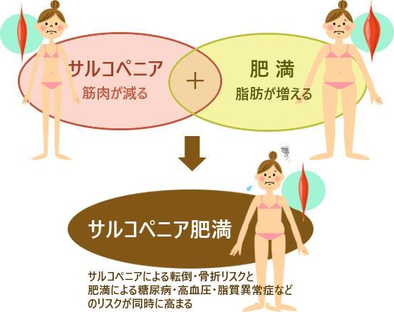 日本健康運動研究所-肥満より怖い「サルコペニア肥満」 食事と運動で ...