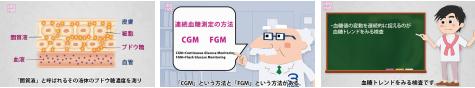 4-7-A 血糖トレンドを知る方法〜 SMBG、CGM、FGM